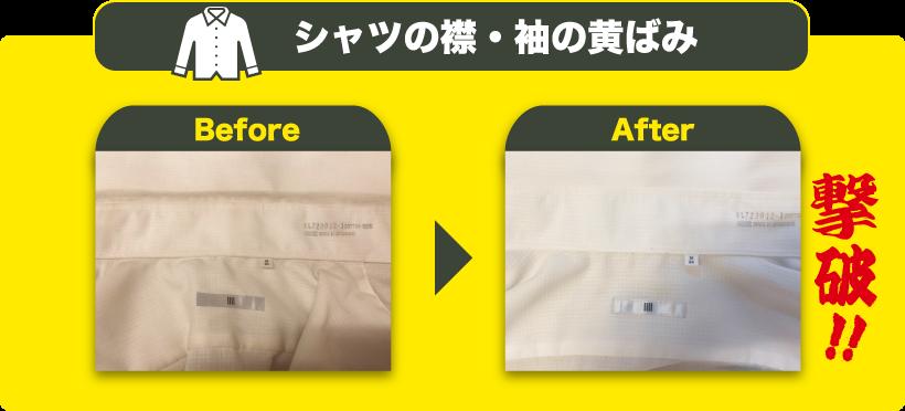 シャツの襟・袖の黄ばみ Before/After